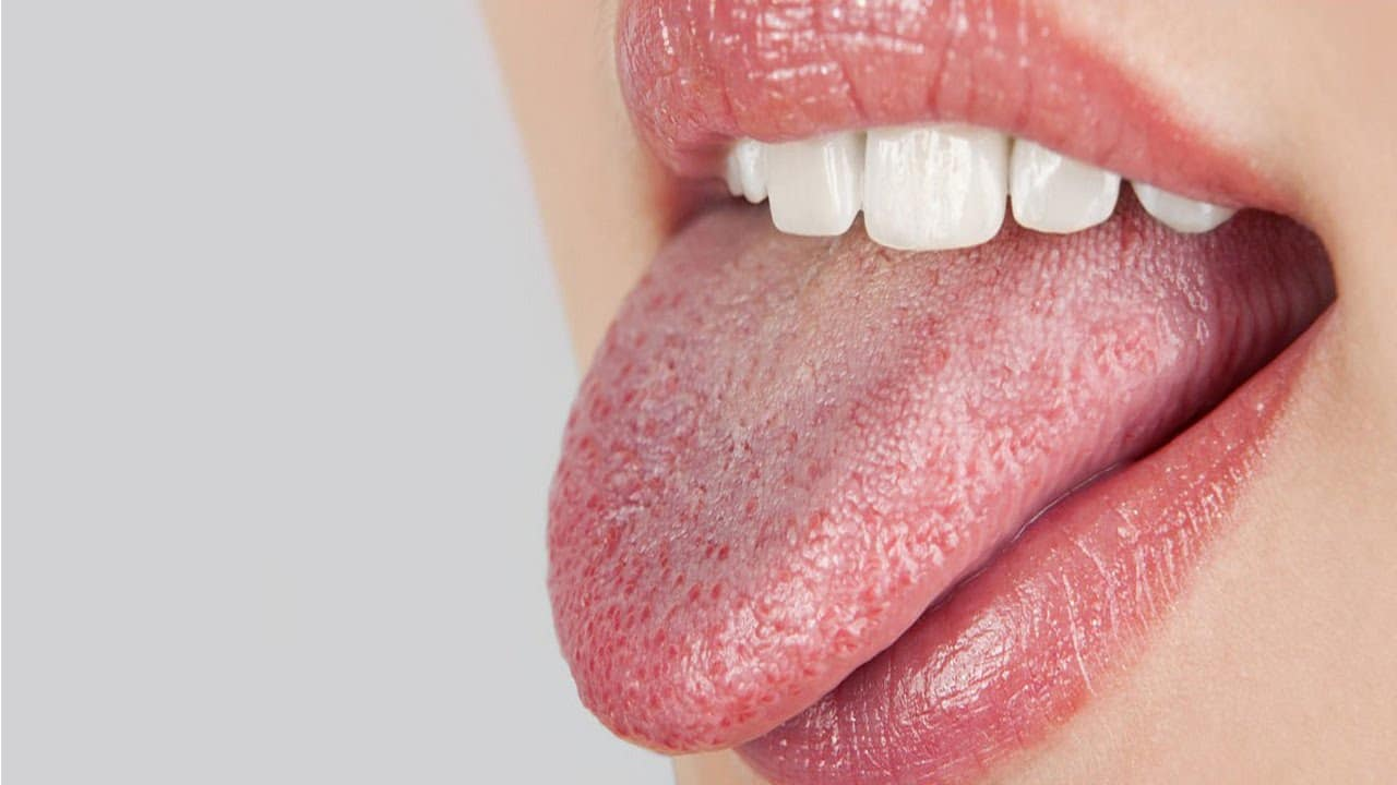 All about dry mouth -